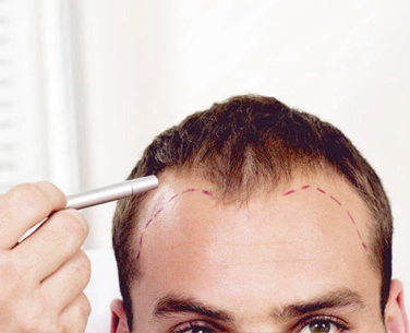 2ο βήμα - Μεταμόσχευση Μαλλιών